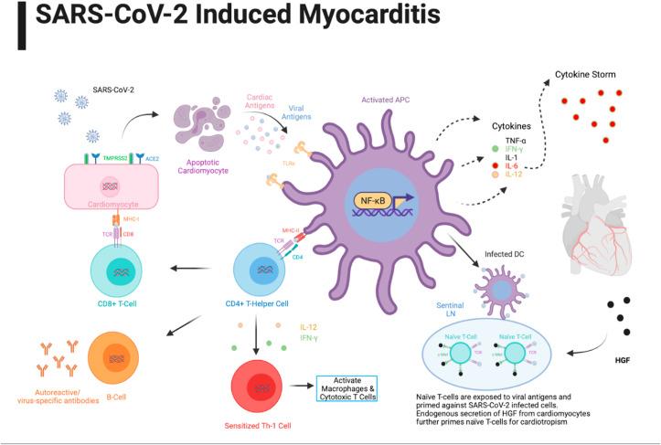SARS-CoV-2 Induced Myocarditis